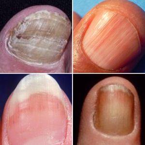 efectos secundarios uñas